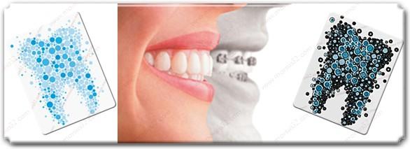 Dişler nasıl hareket eder?